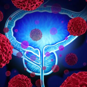 Female sex linked to poor survival outcomes after radical cystectomy for bladder cancer