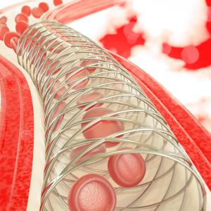 Polymer-free on par with durable polymer drug-eluting stents
