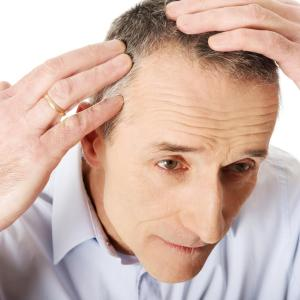 Oral minoxidil proven safe, effective for treating alopecia
