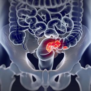 Comorbidities impair quality of life in colorectal cancer patients