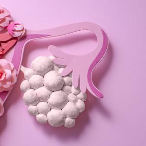 Rucaparib trumps chemo in relapsed, advanced BRCA+ ovarian cancer