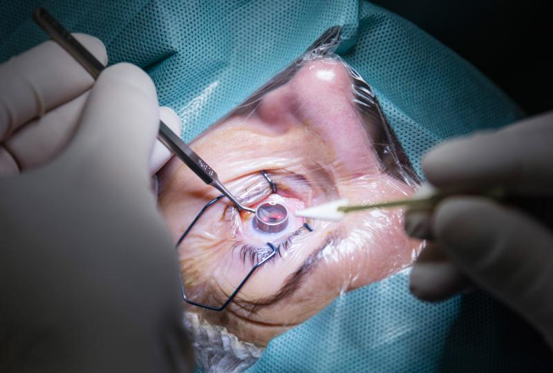 Gelatine stent a useful surgical alternative in refractory glaucoma | News for Doctor, Nurse, Pharmacist | Multidisciplinary | MIMS Malaysia