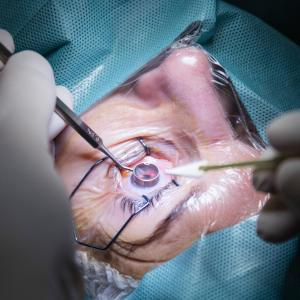 Microstent on par with trabeculectomy for uncontrolled glaucoma