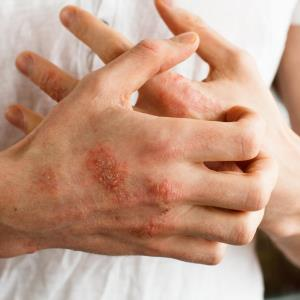 Lebrikizumab plus TCS safely improves patients with moderate-to-severe atopic dermatitis