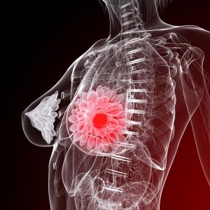 Digital breast tomosynthesis may be better than mammography for breast cancer detection