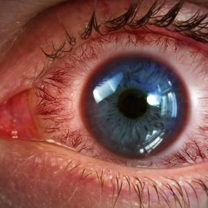 Eye movements altered in primary open-angle glaucoma