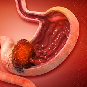 Adjuvant S-1 + docetaxel yields survival benefit for stage III gastric cancer patients following resection