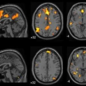 Brain network architecture changes linked to trauma-related dissociation