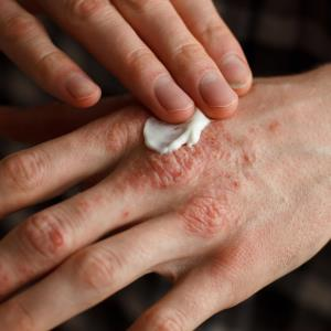 Apremilast, etanercept, ustekinumab tied to reduced infection risk in psoriasis