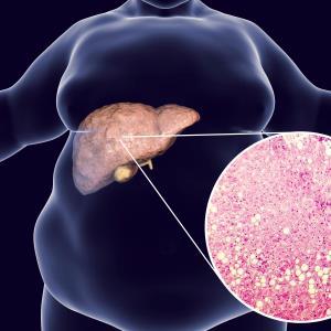 BIO89-100 reduces liver fat in NASH