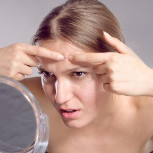 Acne stigma negatively impacts overall quality of life