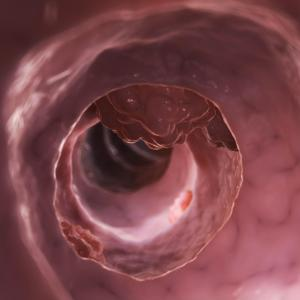 Prolonged tioguanine therapy for IBD well tolerated, effective in maintenance setting