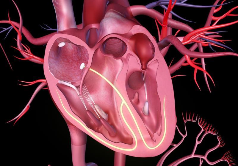 Persistent pulmonary hypertension predictive of mortality after TAVI