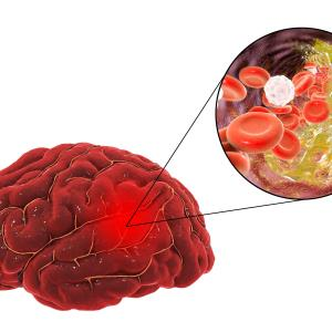 Immediate antihypertensive therapy post-stroke reduces recurrence in patients with hypertension history