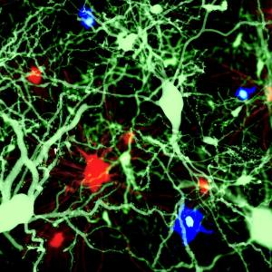 Amyloid β accelerates white matter changes leading to Alzheimer's