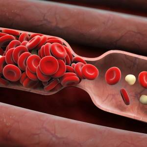 Noncoronary atherosclerosis ups oCAD burden following PCI