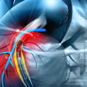 Pulmonary vein isolation does not deliver higher radiation doses