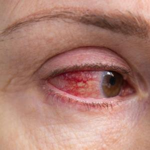 Transdermal androgen relieves dry eye symptoms, elevates QOL in ageing patients