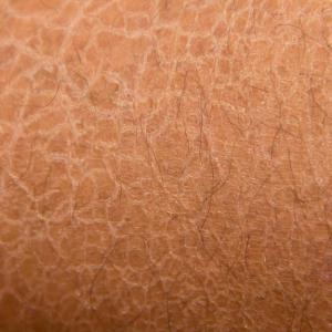 Generalized, local dry skin common among middle-aged adults, seniors