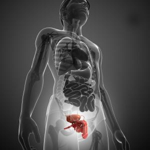 End-stage renal disease, hyperparathyroidism tied to penile calciphylaxis