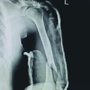 Surgery no better than bracing for humeral fractures