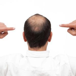 Tofacitinib improves hair regrowth in alopaecia areata