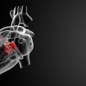 High-sensitivity troponin T tied to MACE after surgical aortic valve replacement