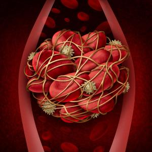 Thrombotic recurrence, organ damage likely in patients with primary antiphospholipid syndrome