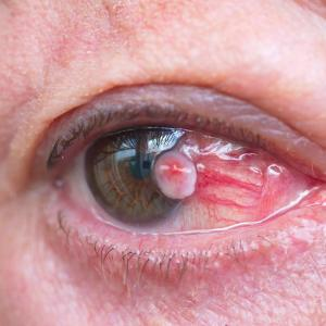 Topical 5-fluorouracil, interferon alfa-2b eye drops both effective, safe for OSSN