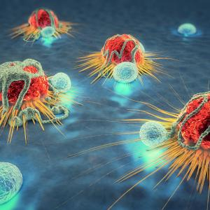 Immunotherapy combined with RT gives promise to metastatic cancers