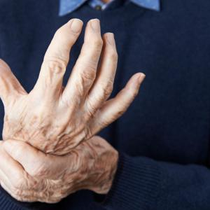 Tocilizumab strikes out in hand osteoarthritis