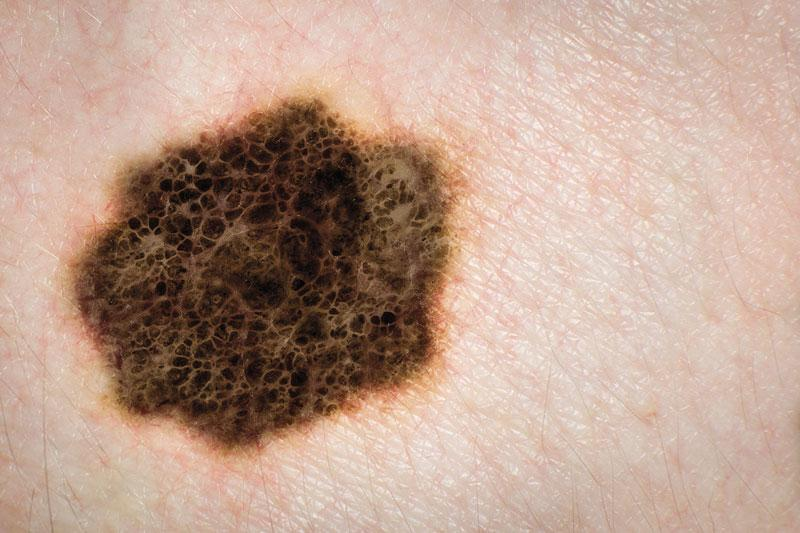 Methyl Aminolevulinate P Odynamic Therapy Mal Pdt And 5 Fluorouracil Cream In The Long Term Treatment Of Superficial Basal Cell Carcinoma Sbcc