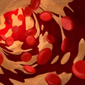High LDL-C/HDL-C ratio may predict new-onset diabetes