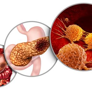 Nab-paclitaxel/gemcitabine combo boosts OS in resected pancreatic cancer