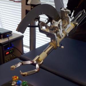 Robot-guided navigation feasible, highly accurate in spinal surgery