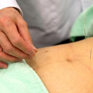 Acupuncture effective, safe for lumbopelvic pain during pregnancy