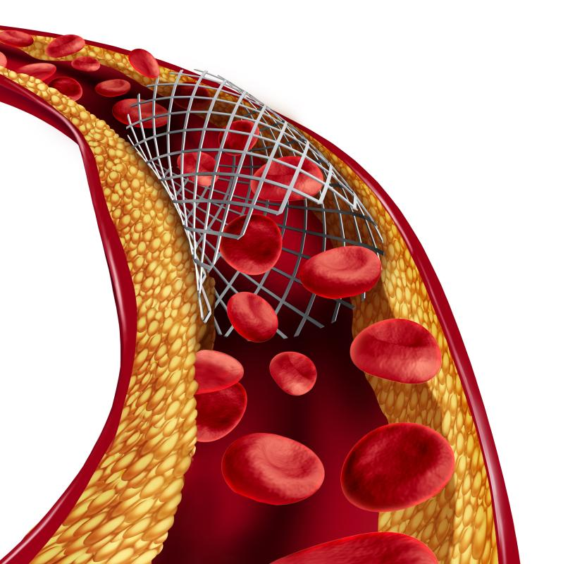 BP-BES better than DP-DES at reducing adverse events, stent thrombosis | News for Doctor, Nurse, Pharmacist | Multidisciplinary | MIMS Malaysia