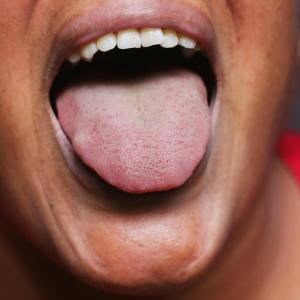 Semaglutide helps shed tongue fat in women with obesity