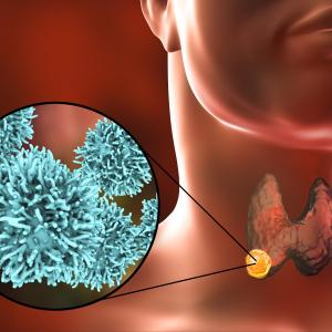 Managing thyroid cancer