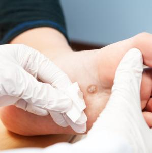 Risk factors for infection development in diabetic foot ulcer