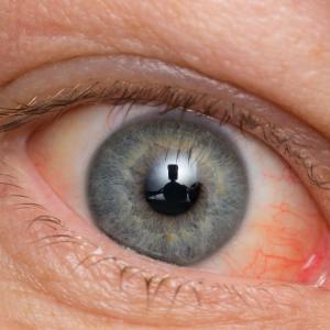Long-term hormone therapy may increase cataract risk in women with T2D