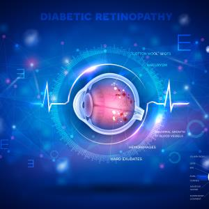 Diabetic retinopathy tied to increased intubation risk in COVID-19