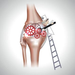 Knee arthritis surgery: To preserve or sacrifice the joint?