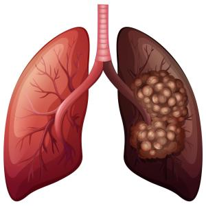 EGFR TKI, pemetrexed improve survival in patients with advanced lung adenocarcinoma