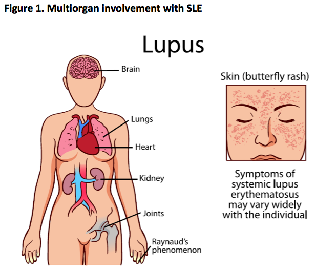 Managing systemic lupus erythematosus in primary care Figure_01
