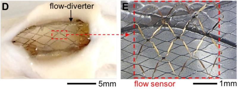 Flow diverter and sensor inserted through a porcine aorta. Image from ACS Nano 2018, doi: 10.1021/acsnano.8b04689.