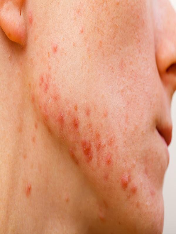 acne%20vulgaris