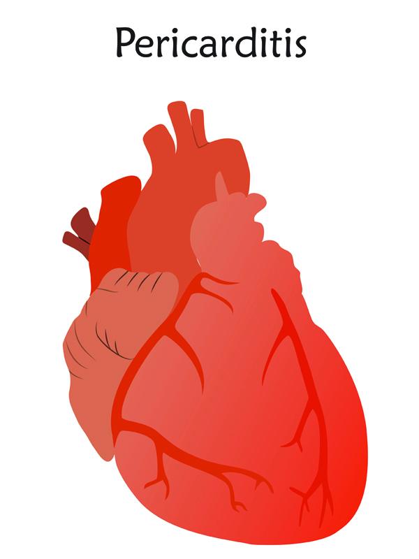 acute%20pericarditis