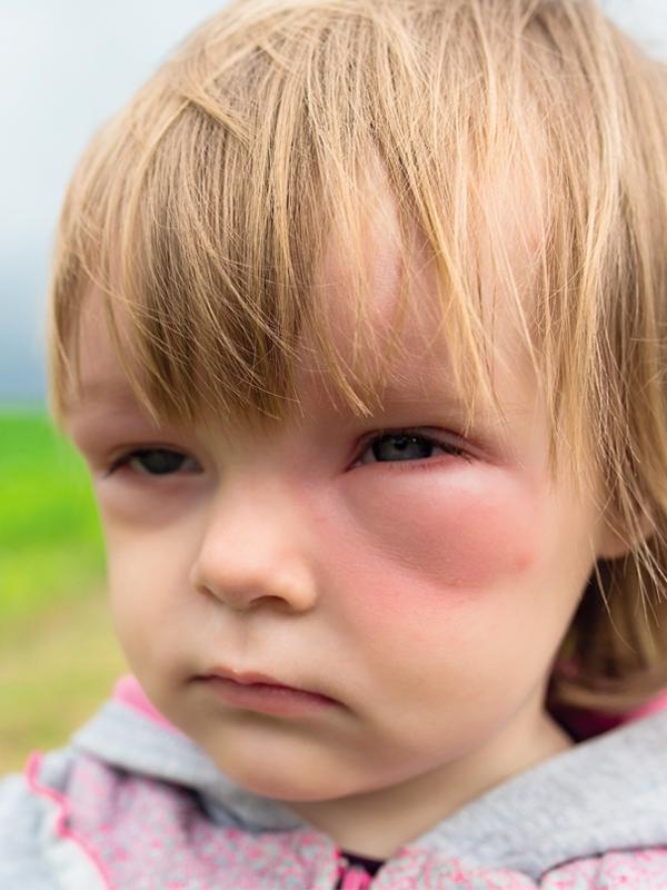 Anaphylaxis (Pediatric)
