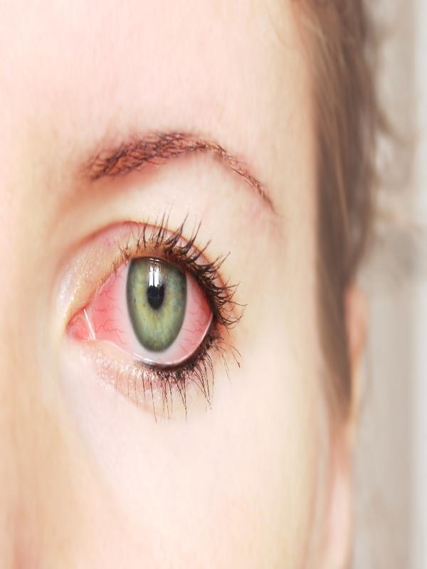 Conjunctivitis - Allergic, Seasonal & Perennial